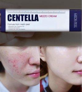 Kojący krem z wyciągiem z centelli do skóry wrażliwej Medi-Peel Centella Mezzo Cream 2
